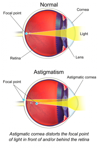 Comparison of a normal eye and the one with astigmatism